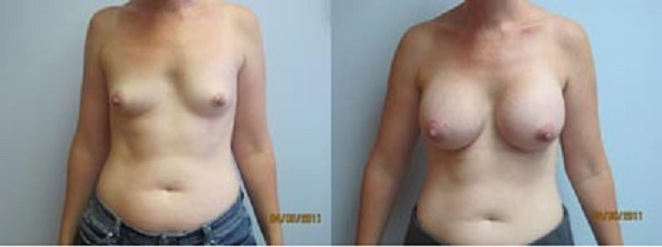 fort lauderdale breast reduction