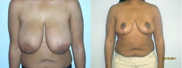 Mammography - Orlando Health