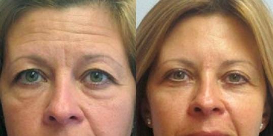 Eyelid surgery 2 months