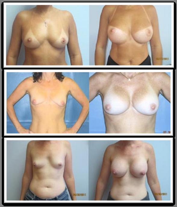 Breast sizes in pics